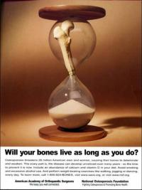 Bones in an hourglass