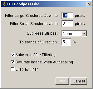 Bandpass filter options