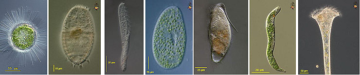 Protists of Atlantic White Cedar Swamps:  Acanthocystis, Coleps, Spirostomum, Paramecium, Metopus, Euglena, and Stentor.