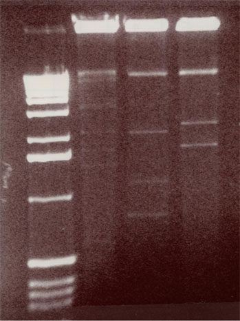 Viral DNA run on an electrophoresis gel.