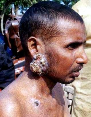 horrific effects of arsenic poisoning