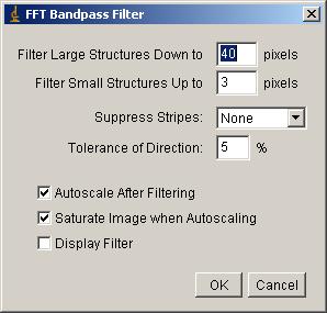 Bandpass filter options