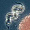 The sulfur bacterium Thiospirillum.