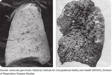 Black Lung from Coal Mining
